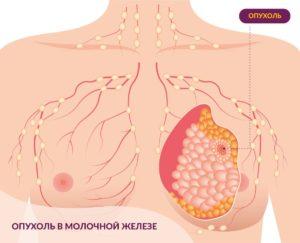 Рак молочной железы. Факторы риска, диагностика, лечение