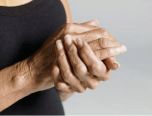 Народная медицина при полиневропатии