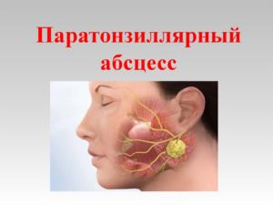 Лечение паратонзиллярного абсцесса