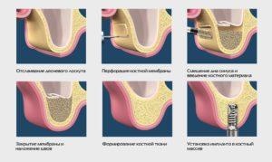 Все о синус-лифтинге при имплантации зубов