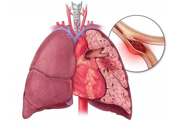 Тромбоэмболия артерии