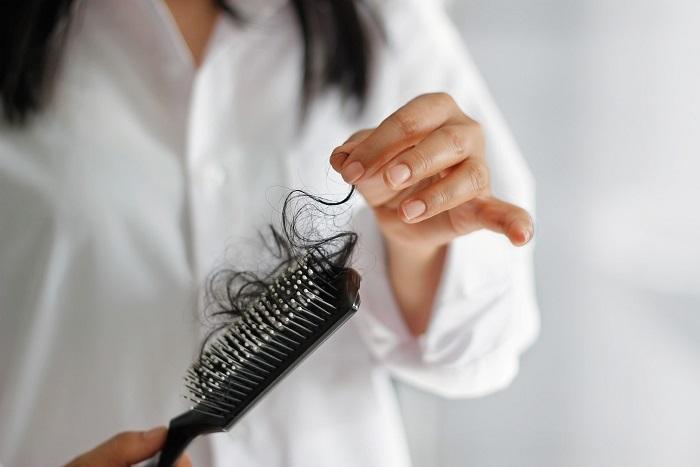 Выпадение волос на голове